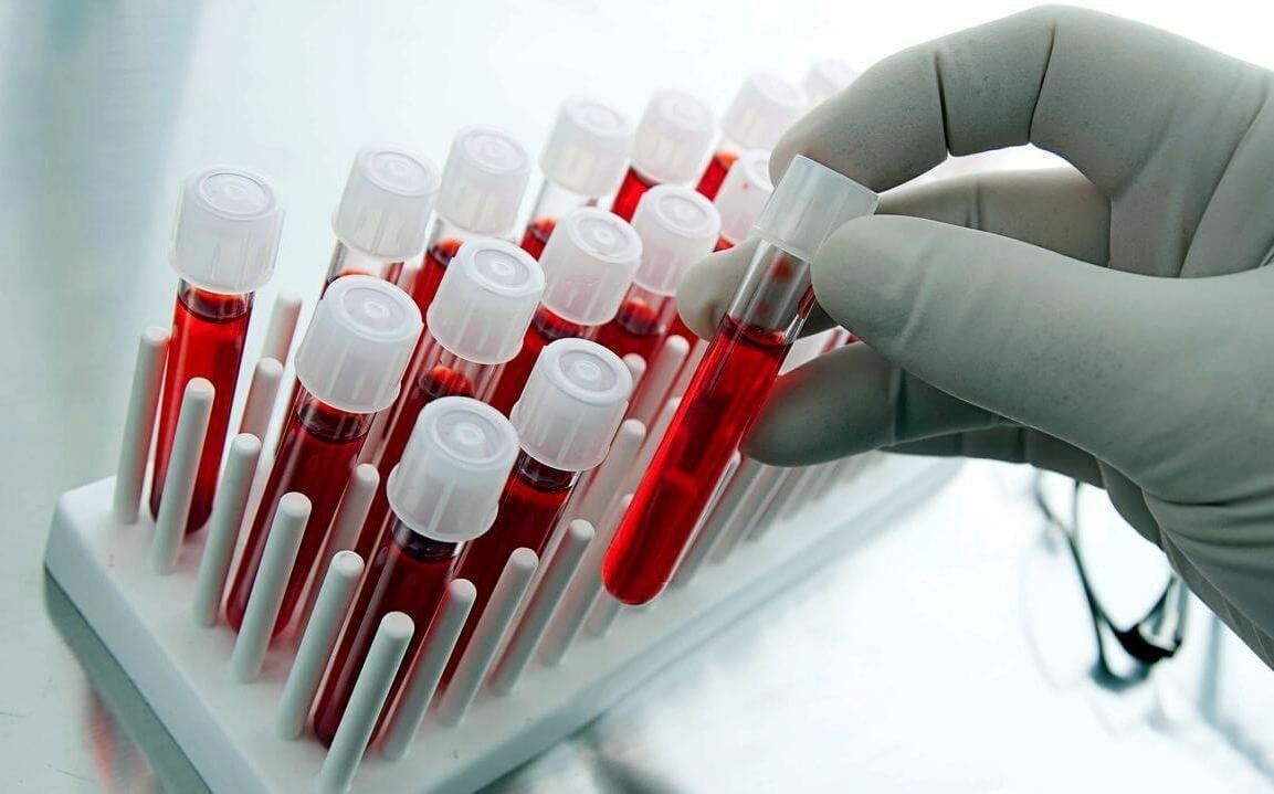 Най-добрите медицински лаборатории за анализи във Воронеж през 2020 г.